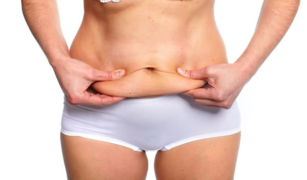 Loose Skin Treated with Tummy Tuck in Los Angeles CA